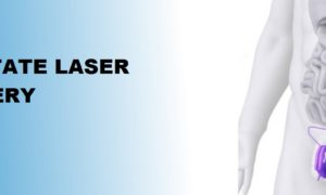 Prostate Laser Surgery in Ahmedabad