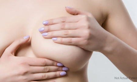 Know about the Breast Implant Surgery